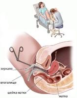 Биопсия шейки матки («Фотек»)
