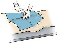 Общеклиническое исследование отделяемого уретры (мужской мазок)